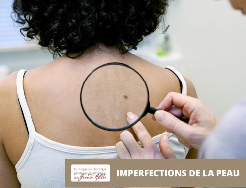 Imperfections de la peau